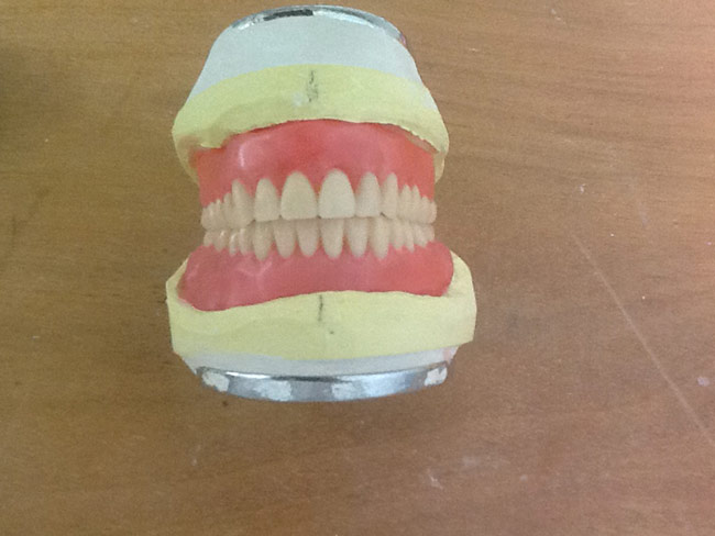 Denture - Denture Before & After Photos in Victoria Ave, Toukley NSW